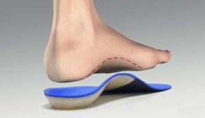 best orthotics for flat feet
